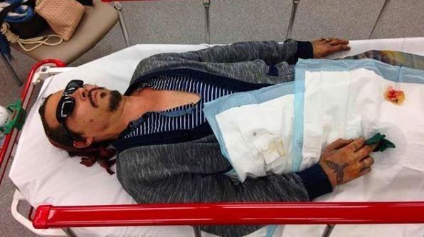 Опубликовано шокирующее фото раненого Джонни Деппа после драки сЭмбер Херд