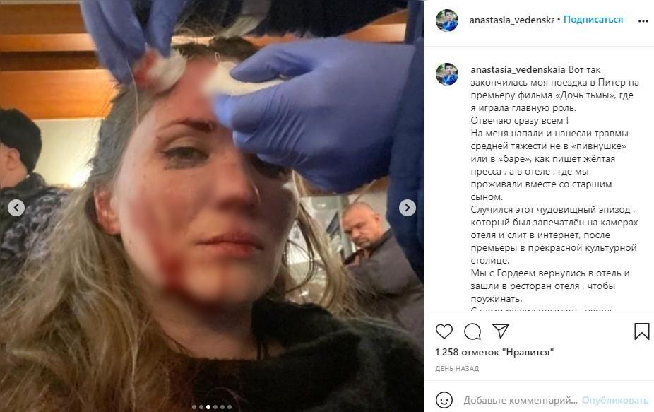 «Кровь, боль, шок»: Экс-жена Епифанцева показала изуродованное после драки лицо