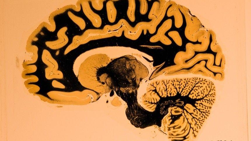 Тест: Как много вы знаете о мозге