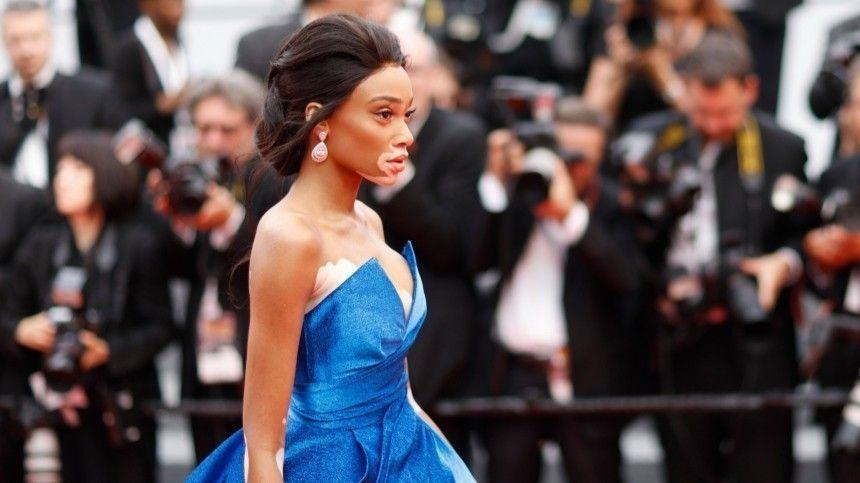 Фэшн-индустрия давно неориентируется нашаблонную красоту ипараметры 90/60/90.