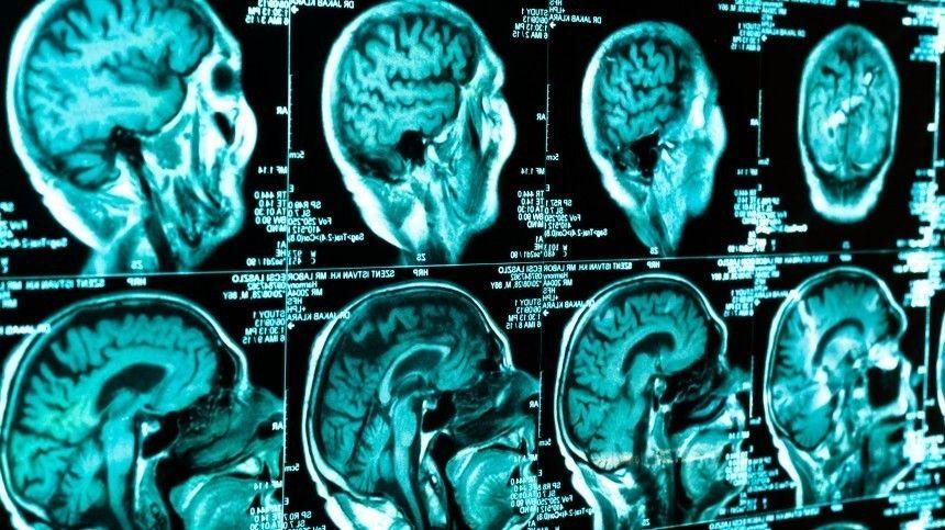Экскурсия поЦентру нейротехнологий ЮФУ была приурочена коВсемирному дню мозга, который отмечается 22июля.