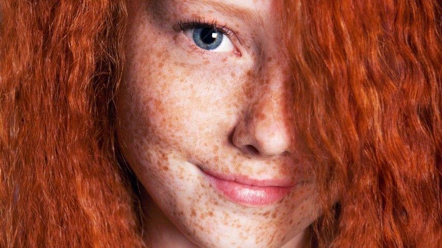 Дерматолог-косметолог объяснил, чем опасны солнечные пигментные пятна.